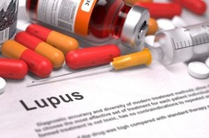 ल्यूपस रोग क्या है