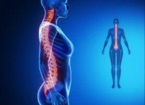 पीठ के निचले हिस्से में दर्द : जोड़ों के डिजेनेरेटिव रोग (Degenerative joint diseases)