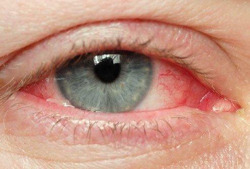 आँखों के सूखेपन के लिए पानी की कमी ज़िम्मेदार होती है