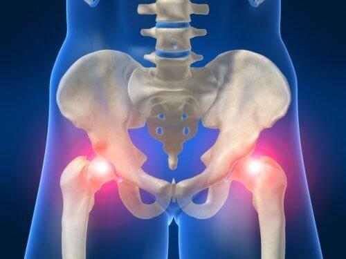ऑस्टियोआर्थराइटिस और कूल्हों के दर्द का नाता