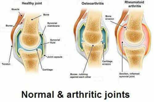ऑस्टियोआर्थराइटिस, ऑस्टियोपोरोसिस और आर्थराइटिस : तीनों में क्या अंतर हैं?