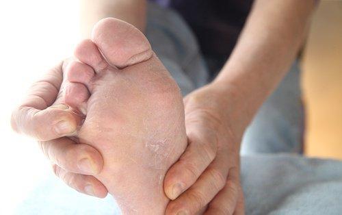 पैरों को सिरका में भिगोना फंगस से छुटकारा दिलाता है