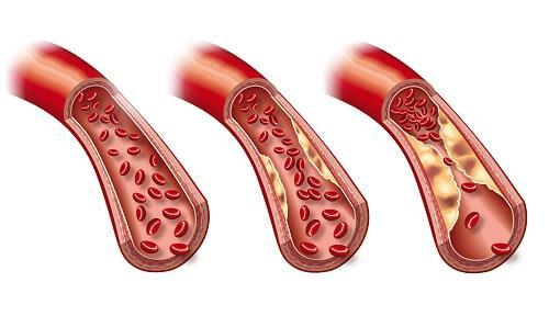 ट्राइग्लिसराइड्स कम करने के लिए वीकली डाइट प्लान