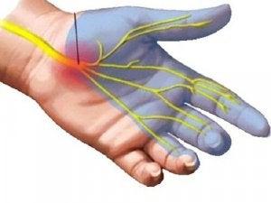 कलाई के दर्द में क्या होता है
