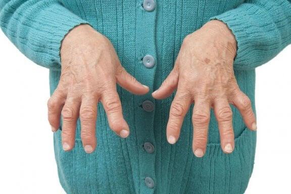 रूमेटाइड आर्थराइटिस से राहत पाने के लिए औषधीय नुस्ख़े
