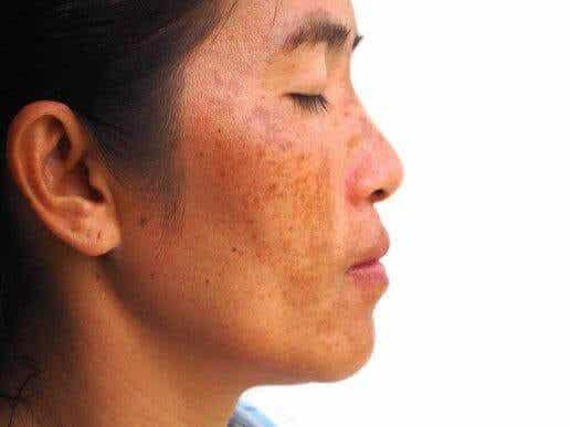 दही, केले और नींबू की मदद से मेलास्मा का इलाज कैसे करें
