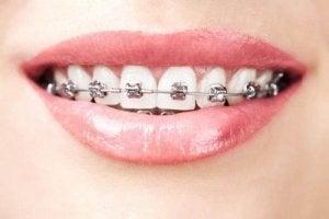 डेंटल एजेनिसिस Dental Agenesis