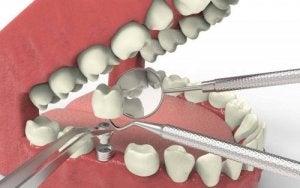 डेंटल एजेनिसिस के कारण Dental Agenesis