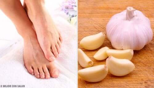लहसुन से करें अन्दर की तरफ बढ़े पैर के नाखून में संक्रमण का इलाज