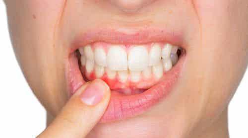 दांत का फोड़ा और उसका इलाज कैसे करें