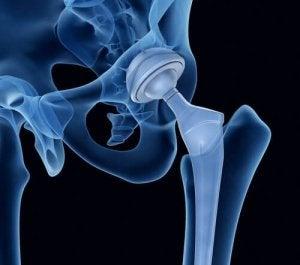 कूल्हे की समस्याएं : ऑस्टियोजेनेसिस इम्पर्फेक्टा (Osteogenesis imperfecta)