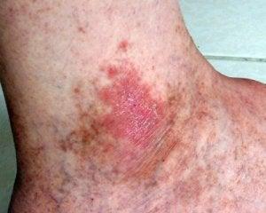 त्वचा कैंसर : घाव