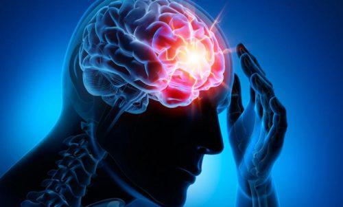 4 सबसे आम सेरिब्रोवैस्कुलर रोग