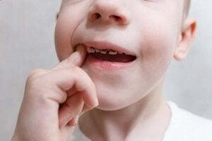 डेंटल कैविटी : दांत क्यों सड़ते हैं