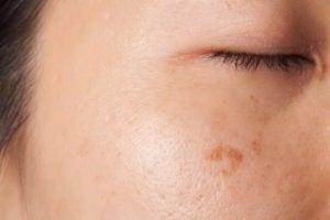 कैंसर : त्वचा में बदलाव और धब्बे