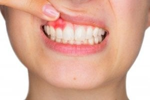 मसूड़ों से खून आना : पीरियडोंटाइटिस (periodontitis)