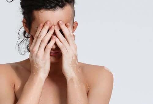 विटिलिगो क्या है? कारण और इलाज के बारे में जानें