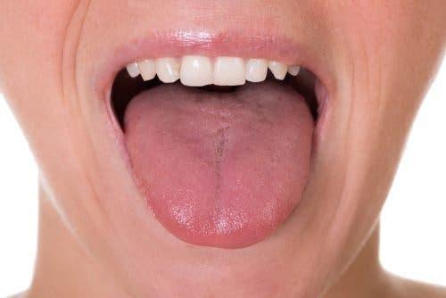 जीभ के कैंसर के 5 संभावित लक्षण