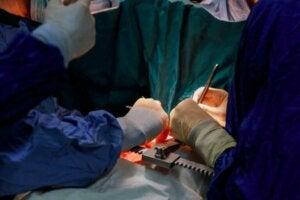कैंसर का इलाज: कैंसर सर्जरी के साइड इफेक्ट