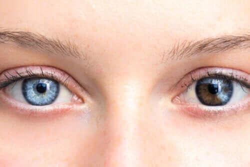 आंखों के रंग में बदलाव गंभीर हो सकता है